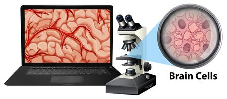 Chiuda in su delle cellule cerebrali con il mircoscope ed il computer portatile