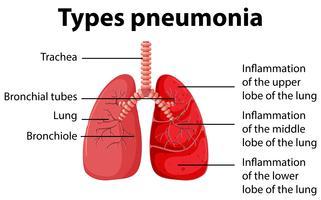 Diagramma che mostra i tipi di polmonite vettore