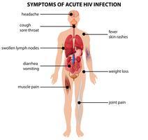 Diagramma che mostra i sintomi di infezione acuta da HIV vettore