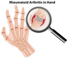 Artrite reumatoide di anatomia umana in mano
