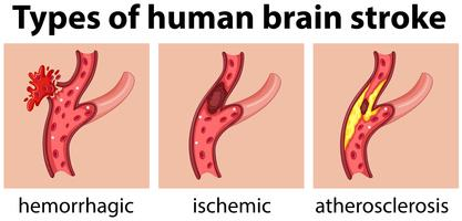 Tipi di ictus cerebrale umano vettore