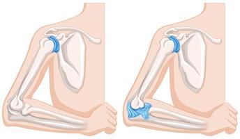 Chiuda sul diagramma delle articolazioni del gomito umano vettore