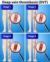 Quattro fasi di trombosi venosa profonda