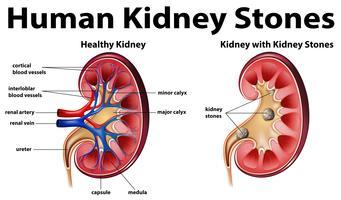 Diagramma di anatomia umana con calcoli renali