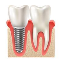 Modello del primo piano del dente stabilito dell'impianto dentale