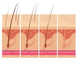 Concetto di pelle perdita di capelli