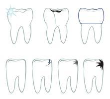 Set dente Segno bianco denti Raccolta medica dentaria isolata. vettore