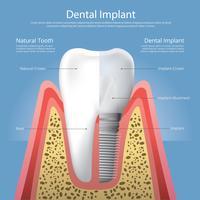 Denti umani e illustrazione di vettore dell'impianto dentale