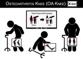Dolore al ginocchio dell'uomo anziano, Monitor mostra l'immagine dell'artroplastica totale del ginocchio (prima e dopo il trattamento chirurgico) Vettore del ginocchio dell'osteoartrite (design piatto) (concetto di assistenza sanitaria)