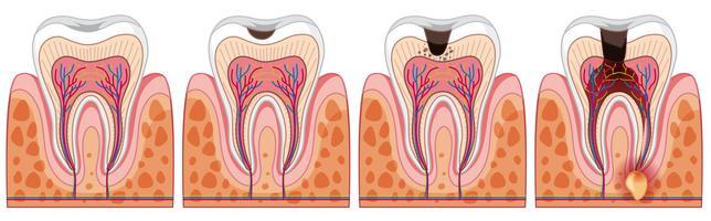 Una serie di denti umani vettore