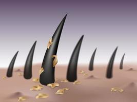 Concetto di forfora e malattia del cuoio capelluto