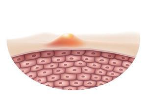 Chiuda in su dell'urto dell'acne sulla superficie della pelle