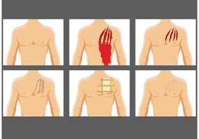 Ripping di vettori di ferite