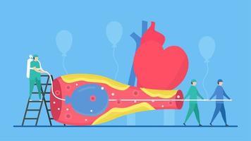concetto di angioplastica con palloncino con infermieri vettore