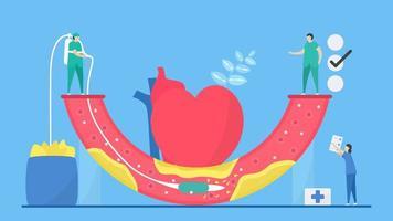 concetto di aterosclerosi con arteria di pulizia del personale vettore